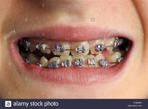 braces teeth braces dental braces child with braces on their teeth stock photo royalty free