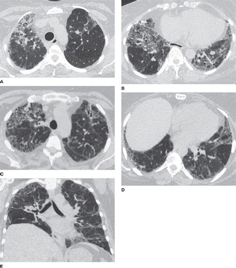 mosaic pattern lung differential diagnosis modern approach to thoracic imaging diagnosis thoracic key