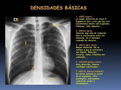imagenes radiograficas pdf imagenolog 237 a del t 243 rax clase