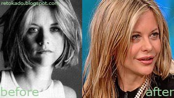 post plastic surgery meg ryan hairstyles meg ryan s lip job filipino celebrity plastic surgery