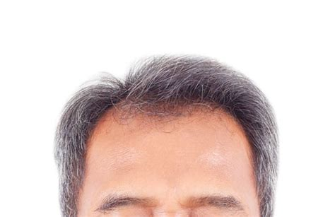 thin hair scalp hurting 8 scalp conditions you should never ignore