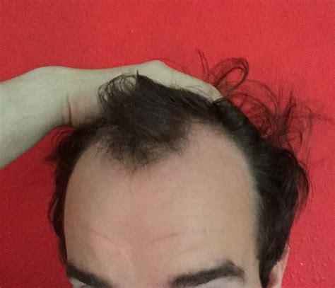maenner frisuren duennes haar hohe stirn yskgjtcom