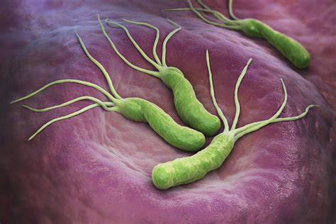 test helicobacter helicobacter pylori divahair ro