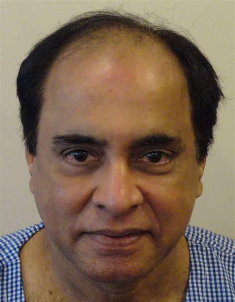 aamir khan hair transplant amir khan hair transplant before and after dubai cosmetic