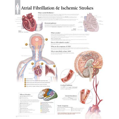 atrial fibrillation diagram scientific publishing atrial fibrillation and ischemic