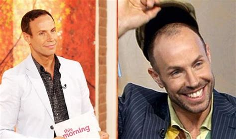 paddy mcguinness hair implants gordon ramsay and other celebs who ve had hair transplants