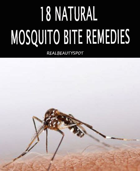 best 25 mosquito bite remedies ideas on bug