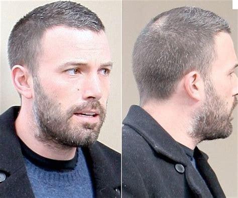 ben affleck bald toupee before and after wig