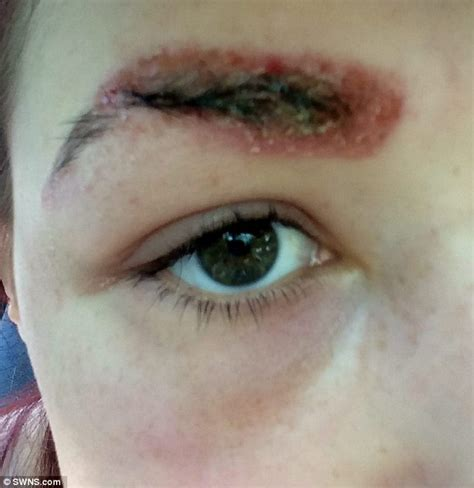 teen had severe allergic reaction to busy eyebrow