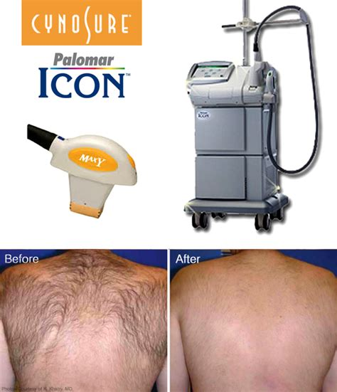 palomar laser for hair removal lasers for hair removal services in miami
