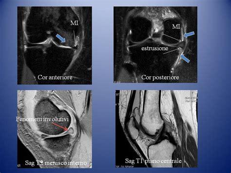 condilo femorale interno ginocchio patologia artrosica radiologia ortopedica