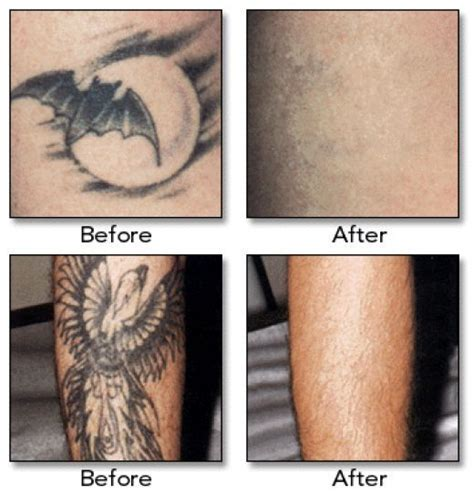 methods of tattoo removal laserless removal methods everything need to and