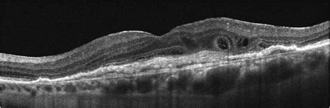 pattern dystrophy aao outer retinal tubulation octmd