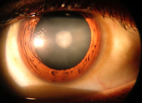 trouble seeing in bright light cataract wikipedia