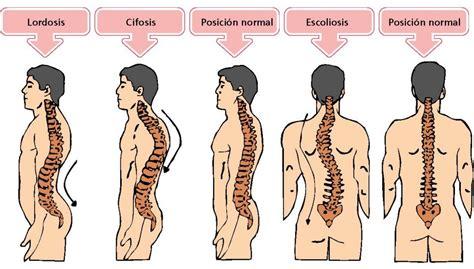 anatoma para posturas de anatom 237 a de la columna vertebral i curvaturas