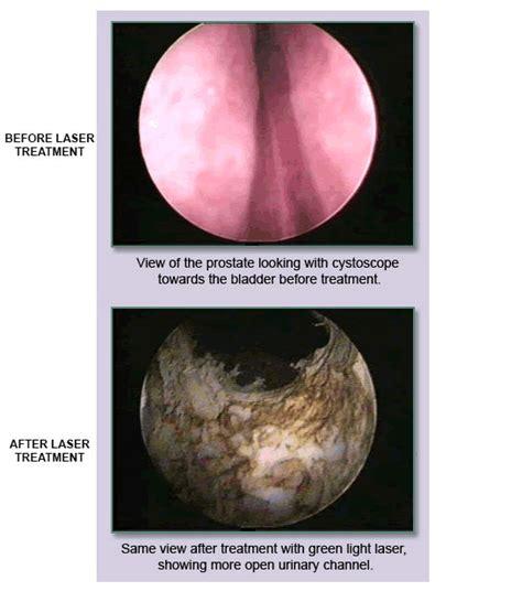 green light surgery for enlarged prostate green light laser prostate iron blog