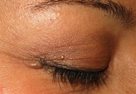 cyst on s eyelid benign eyelid lesions a d rubin m d