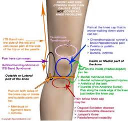 Interior Knee Ligament Some Common Knee Pain Causes Running Pinterest