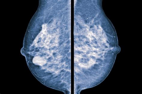 mammogram images mammography vs thermography comparing the benefits