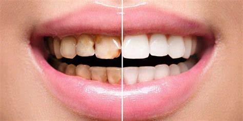 best tooth whitening best teeth whitening pen reviews only guide you need
