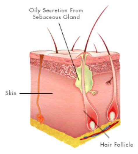 ingrown hair diagram hair follicle definition of hair follicle by hair