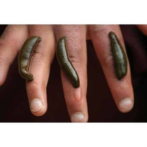 Leech Detox by Leech Therapy For Wounds Www Pixshark Images
