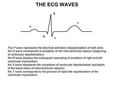 ecg pattern meaning ecg lecture