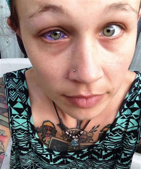 eyeball tattoo aftercare botched eyeball tattoo leaves woman crying blue tears