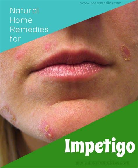 7 best images about impetigo