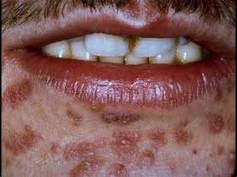 gonorrea imagenes gonorrea o blenorragia causas sintomas como se contagia