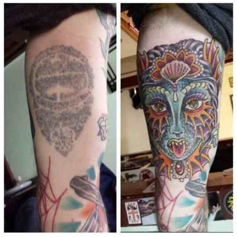 laser tattoo removal glasgow laser removal glasgow
