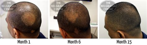 new treatment for alopecia 2014 treatment for alopecia areata