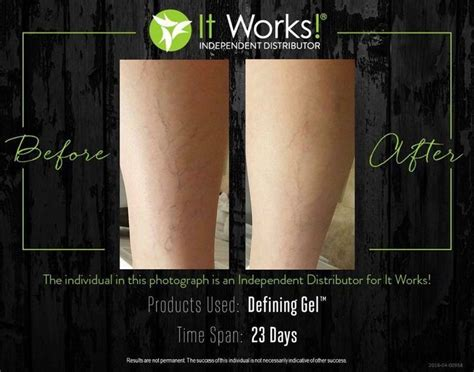 This Cellulite Works by 25 Best It Works Defining Gel Ideas On
