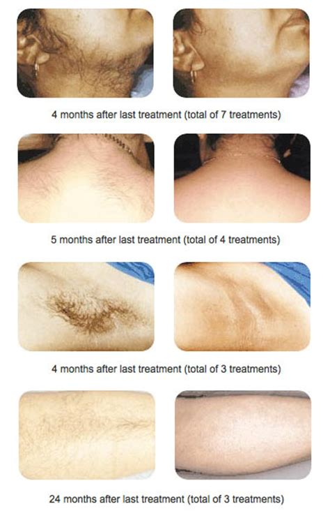 diode laser hair removal before and after laser hair removal