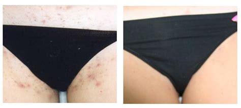 how to remove engrown hair onunderwear line ingrown hair scars bikini oasis amor fashion
