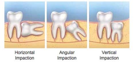 surgery albert lea mn uptown dental