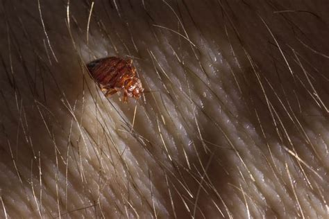 terminix bed bugs bed bugs or lice how to tell the difference terminix