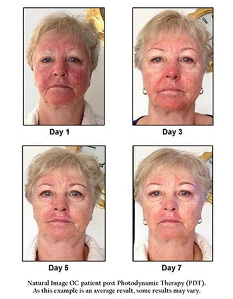 Sembuh Dari Kanker Dengan Berolahraga kanker kulit wajah berikut ciri cirinya kanker kulit