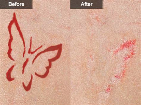 surgically remove tattoo surgically removing tattoos
