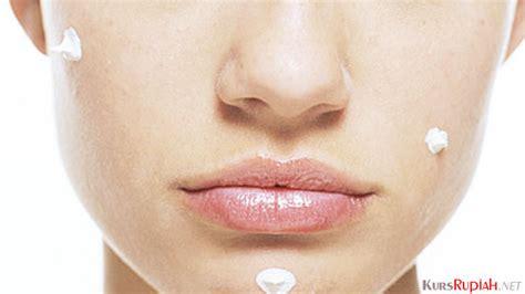 Obat Isotretinoin dijual di apotik seharga rp350 ribuan bolehkah obat