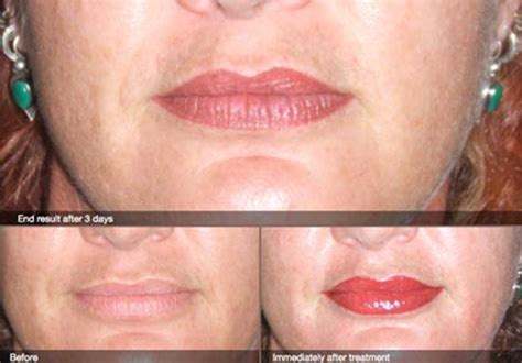 cosmetic tattooing gallery of beautiful permanent makeup