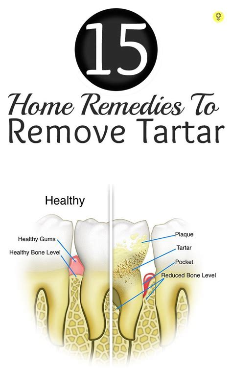 25 best ideas about tartar removal on how to