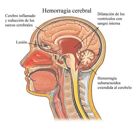 dolor cuero cabelludo dolor de nuca y cabeza cuello hombros espalda causas