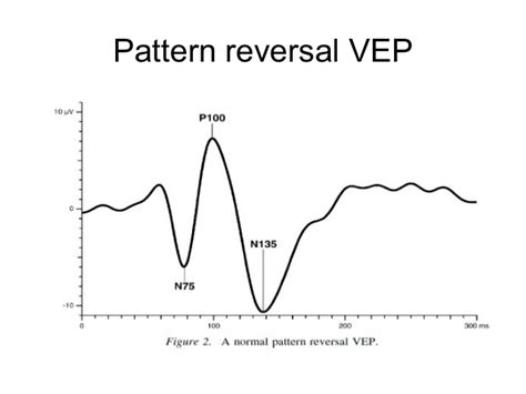 pattern vep v isual evoked potentials