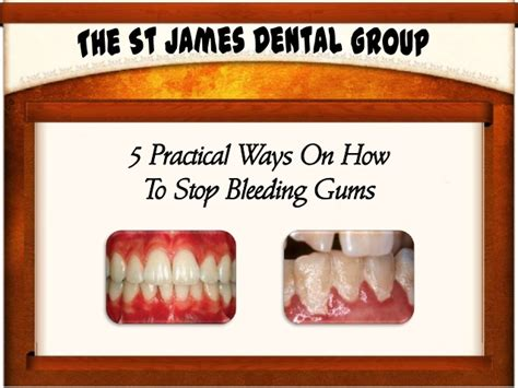 how to stop bleeding on a 5 practical ways on how to stop bleeding gums