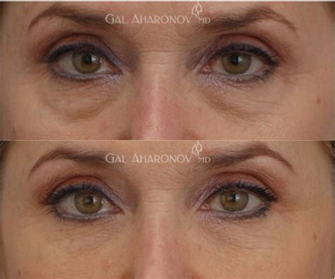 Do They Make Botox For Bags by Best 20 Eye Fillers Ideas On Botox