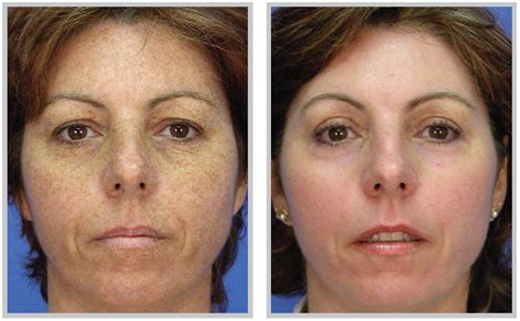 sun spot and age spot removal