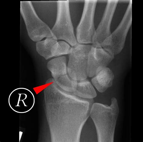 Scaphoid bone; Navicular Bone of Hand Fractured Wrist Treatment