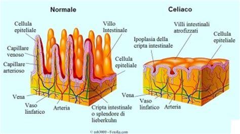 celiachia e mal di testa sintomi della celiachia o intolleranza al glutine esami