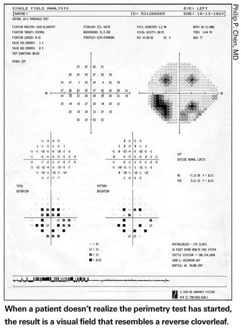 cloverleaf pattern visual field visual field test interpretation image search results